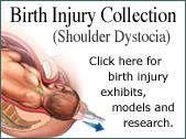 Birth Injury Collection - Shoulder Dystocia
