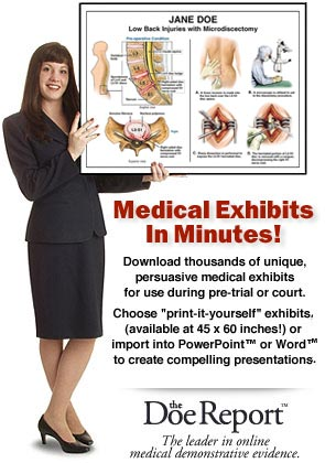 Medical Exhibits In Minutes_spine