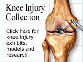 Knee Injury Collection