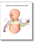 Brachial Plexus in Infants