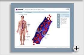 Deep Vein Thrombosis (DVT) - Male